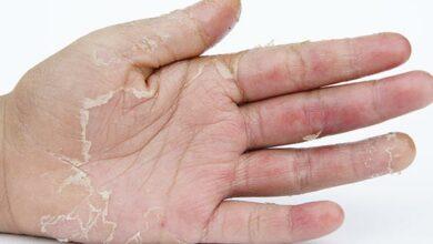Photo of التقشير الكيميائي للركب ومميزاته وأضراره على البشرة