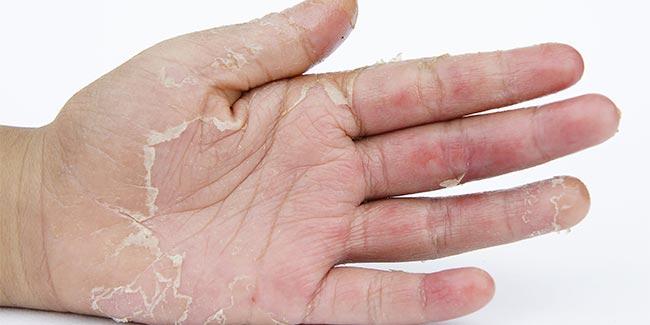 التقشير الكيميائي للركب طريقة استخدامه ومميزاته وأضراره على البشرة