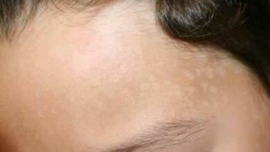 Photo of بقع بيضاء في الوجه أسباب ظهورها وطرق علاجها