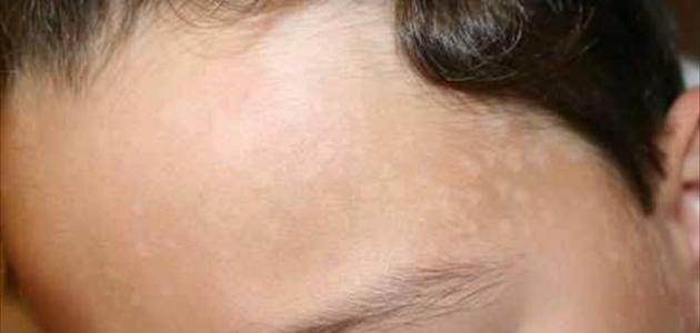بقع بيضاء في الوجه أسباب ظهورها وطرق علاجها
