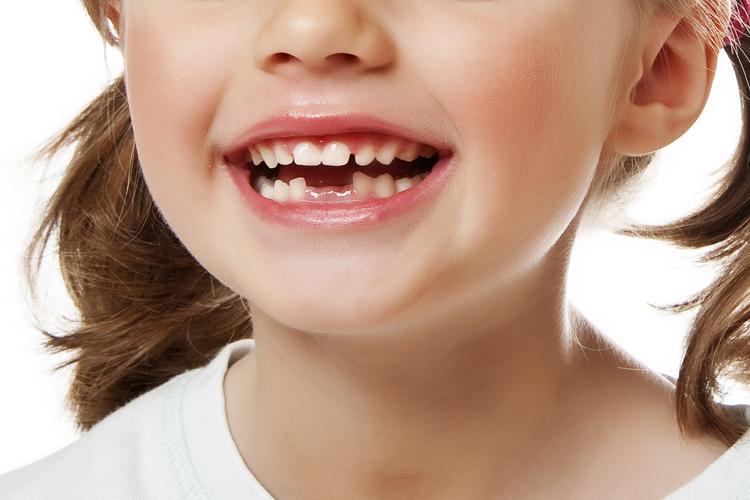 تفسير حلم سقوط الأسنان السفلى للمفسرين ابن سيرين والنابلسي