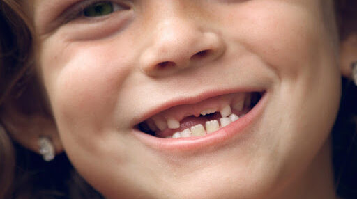 تفسير حلم سقوط الأسنان بدون دم وألم عند ابن سيرين وابن شاهين