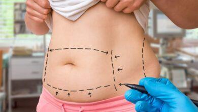 Photo of تفسير حلم عملية جراحية في البطن وظهور المرض من خلال علم المقياس