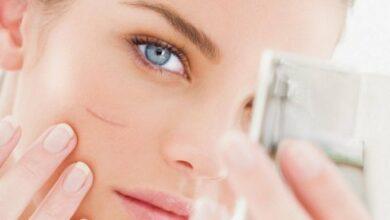 علاج الجروح والخدوش في الوجه باستخدام 9 وصفات طبيعية أو عملية الليزر لمعالجة الندبات