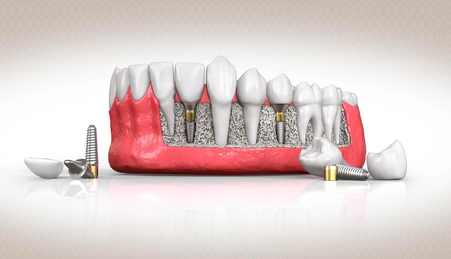 أسعار زراعة الأسنان الفورية في مصر 2021أسعار زراعة الأسنان الفورية في مصر 2021